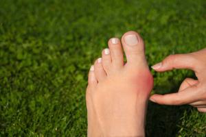 早めの予防が肝! 毎日できる外反母趾予防