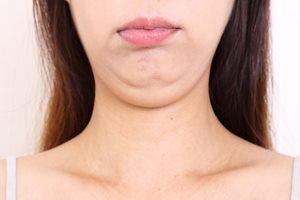 脂肪じゃなかった!? 二重あごを作る「肌のたるみ」の原因と解消法