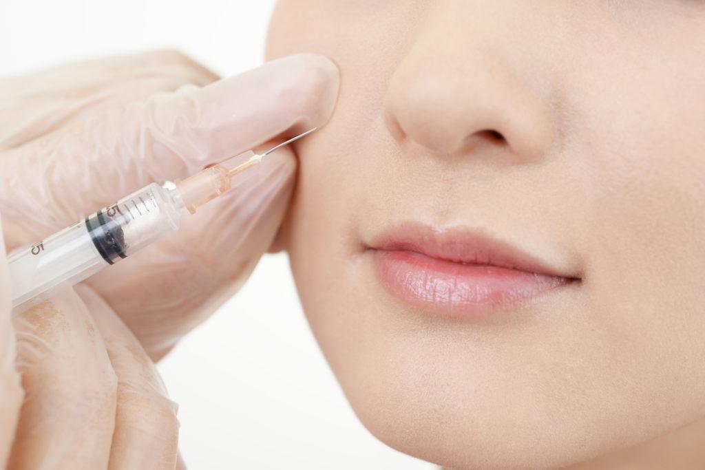 こけた頬にお悩みなら。ヒアルロン酸注入でふっくら顔を取り戻そう!