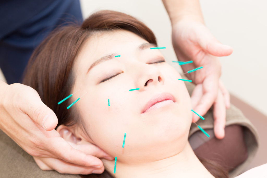 話題の「美容鍼」の効果とは。どんな方が施術を受けるべき?