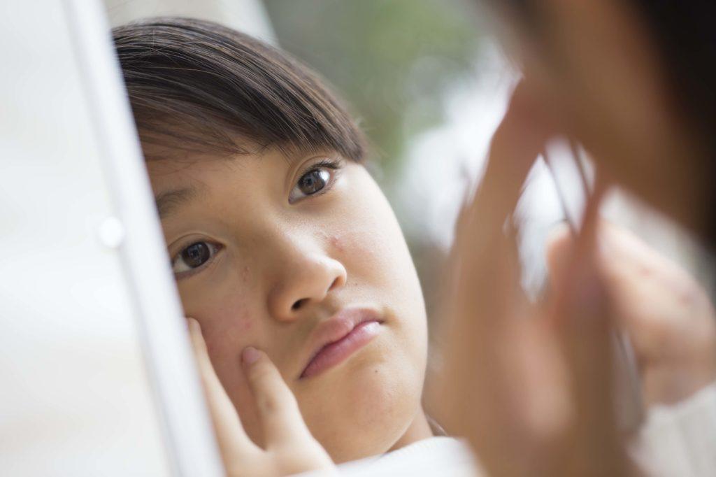 傷跡・ニキビ跡の治療に効果的な「フラクセルレーザー」とは