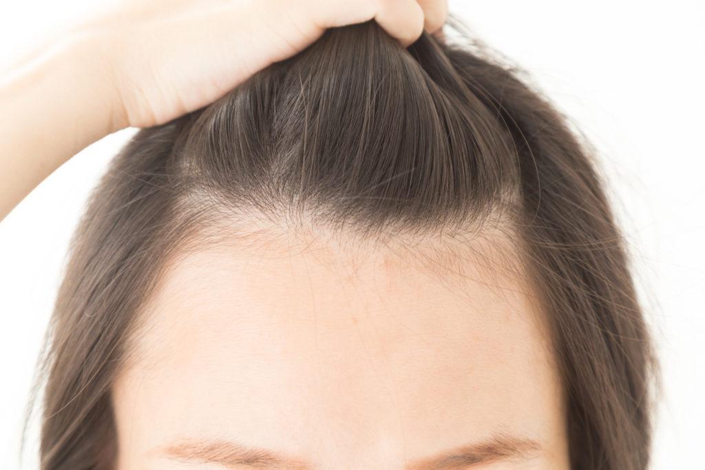 額の産毛は目立ちやすい!? 正しい処理&アフターケア方法