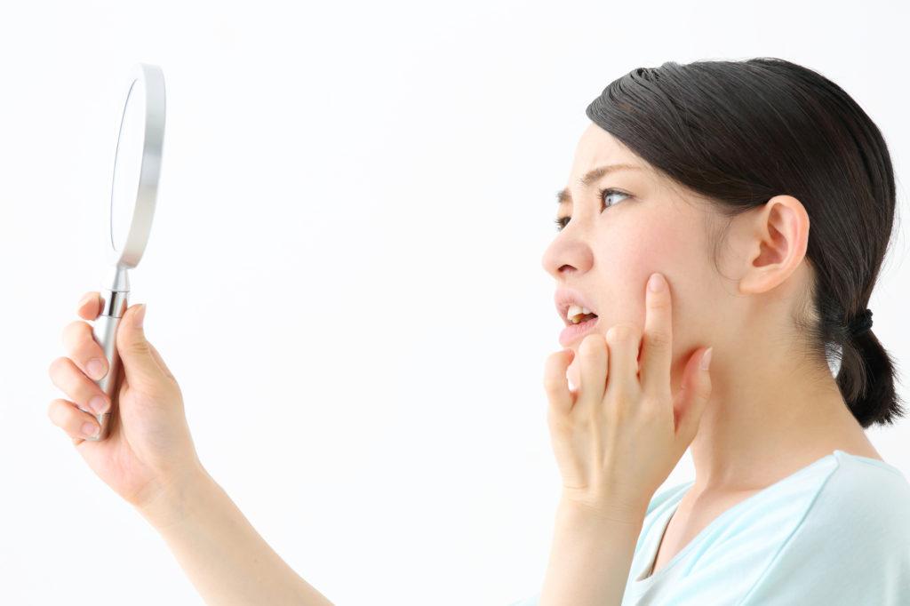 ニキビ跡がケロイドになりやすい顔のパーツとは?